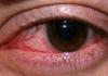 kelopak mata