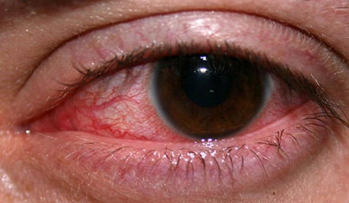 Photo of Selain Bintitan, Ini 8 Penyebab Kelopak Mata Membengkak
